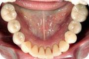 インプラントの組み合わせ治療:症例1