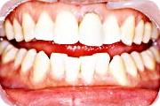 予防歯科:症例1