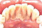 予防歯科:症例2